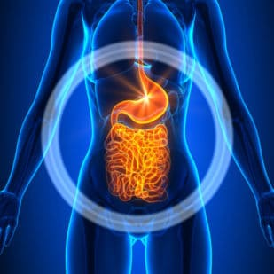 An illustration of the intestinal tract where leaky gut occurs