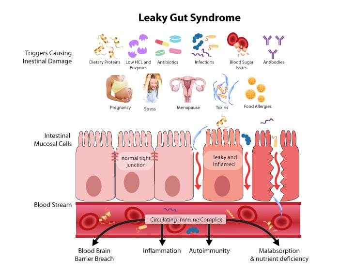 An illustration of the mechanism of Leaky Gut Syndrome